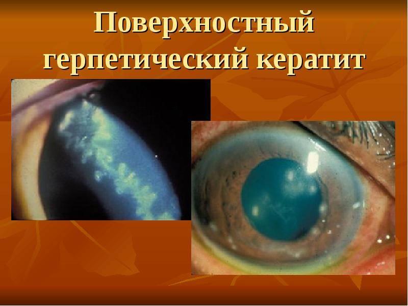 Герпетический кератит — опасности и лечение