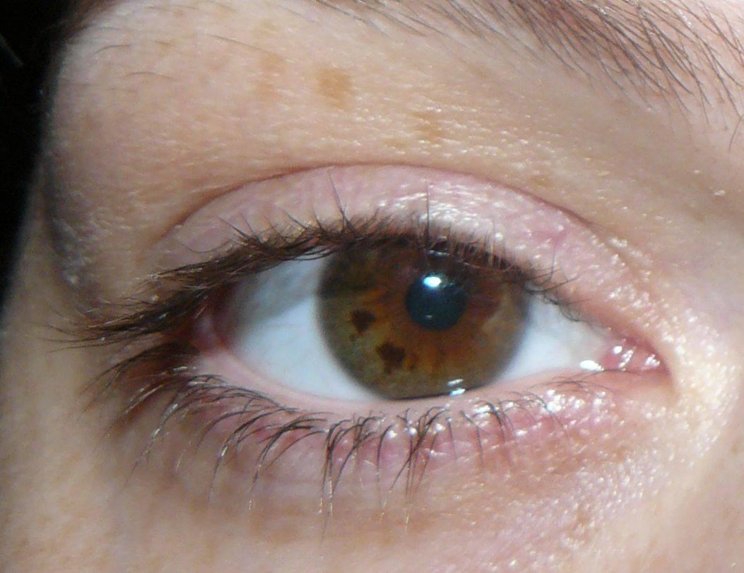 Дискомфорт от невуса под правым глазом у женщин и как от него избавиться
