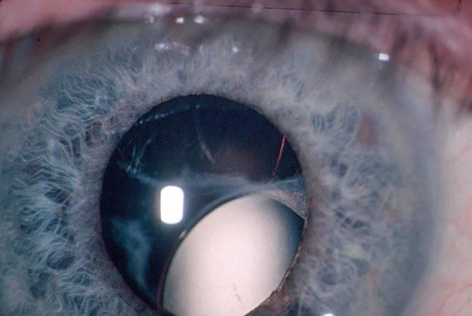 Травма и повреждение роговицы глаза – симптомы и лечение, глазные капли