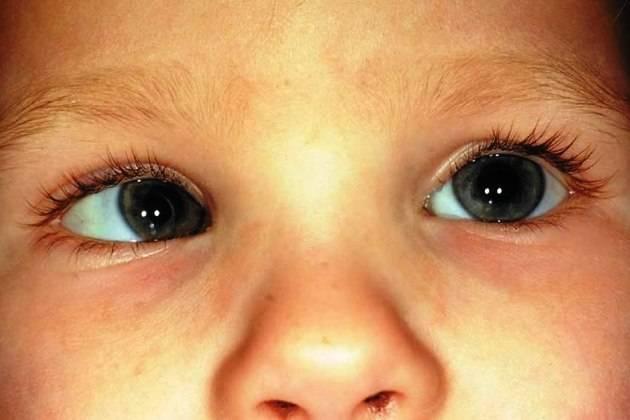 Врожденная глаукома детей - лечимглаукому