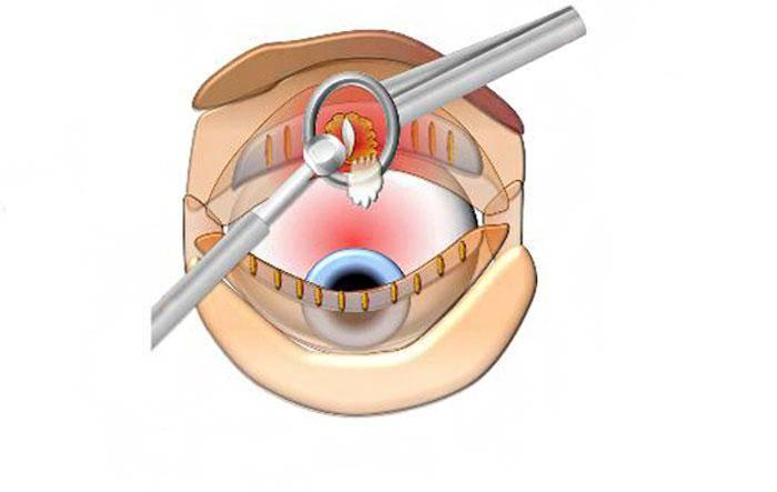 Хирургическое удаление халязиона