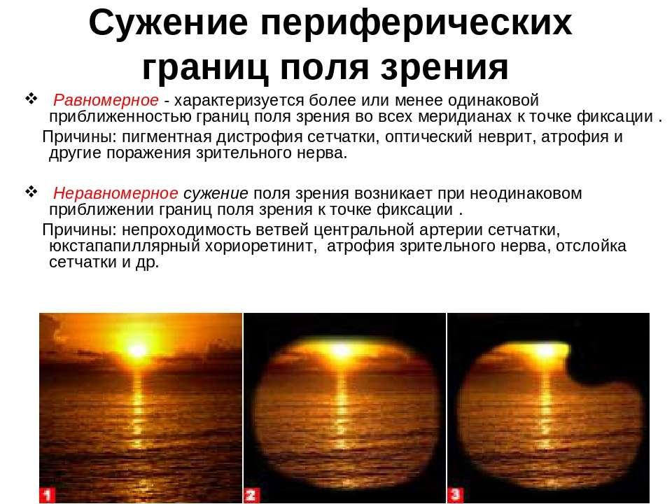 Сужение поля зрения - причины и лечение