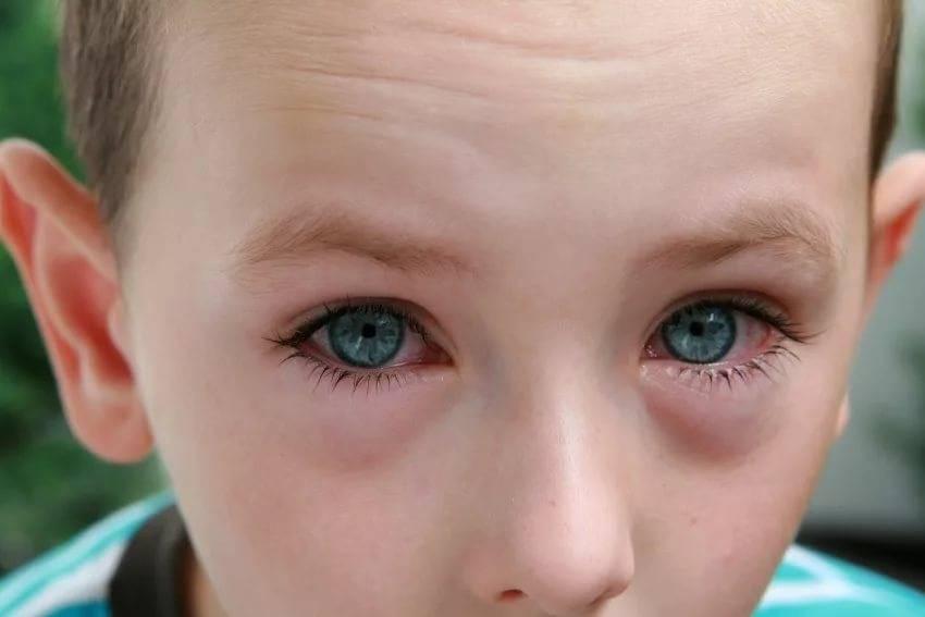 Красные глаза при простуде: основные симптомы