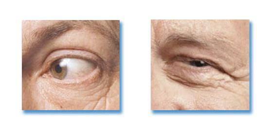 Что такое блефароспазм и как его лечить oculistic.ru что такое блефароспазм и как его лечить