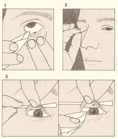 Что делать, если линза прилипла к глазу и не снимается oculistic.ru что делать, если линза прилипла к глазу и не снимается