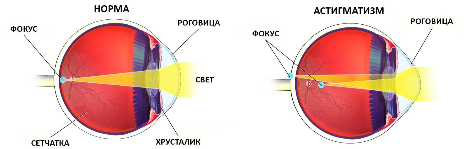 Смешанный астигматизм одного и обоих глаз: что это такое, причины, симптомы, лечение, диагностика, профилактика
