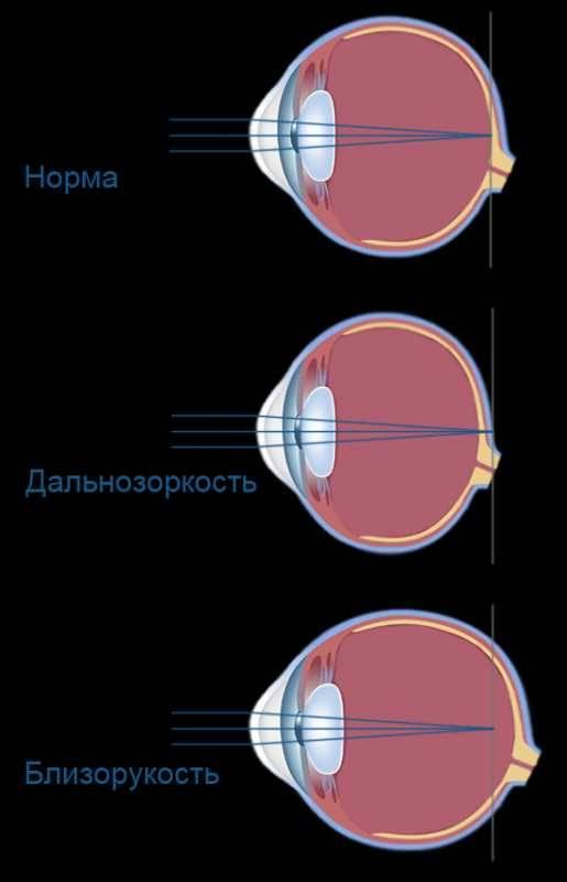 Что такое миопический астигматизм