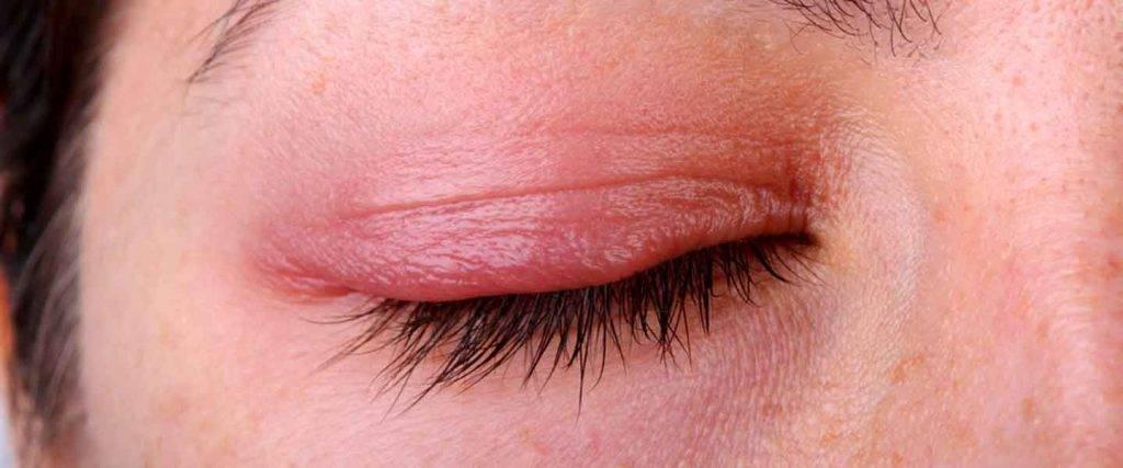 Веко опухло над глазом: причины, симптомы, народные и медикаментозные средства лечения