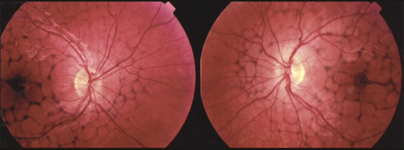 Что такое абиотрофия сетчатки: причины, симптомы и лечение