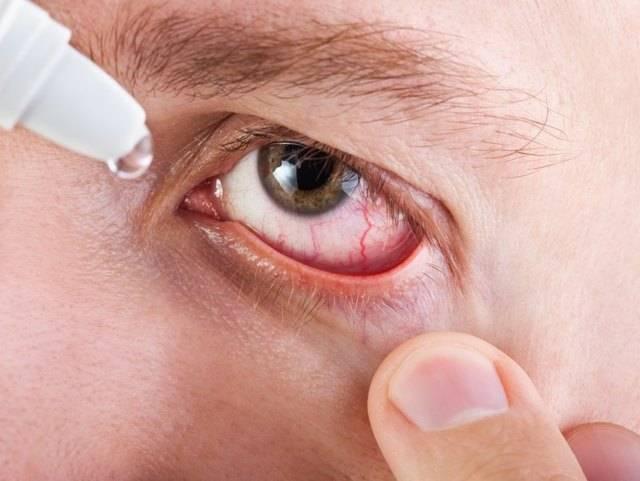 Грибок глаза: симптомы и лечение грибкового заболевания, возможны ли поражения роговой оболочки