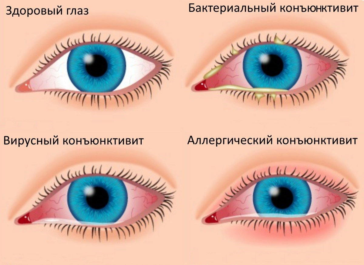 Конъюнктивит глаз увзрослых идетей— как лечить аллергический, вирусный ибактериальный: чем исколько дней лечится