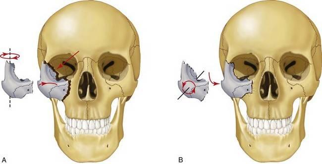 Почему болит левая или правая часть лица