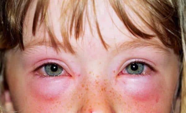 Почему появляется аллергия глаз: симптомы и основные терапевтические методы