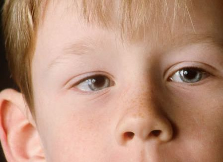 Амблиопия: что это такое, симптомы, причины, лечение ленивого глаза у взрослых, степени