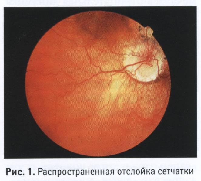 Отслойка сетчатки, лечение причины и симптомы. все о глазных болезнях - vseozrenii.