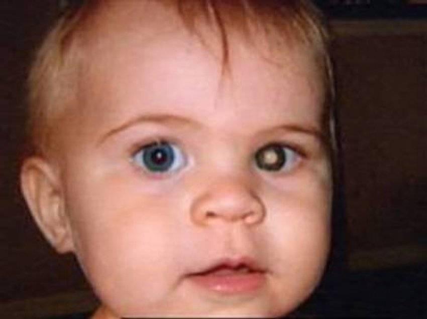 Ретинобластома глаз у детей: фото и симптомы начальной стадии