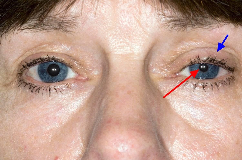 Западение глазного яблока - энофтальм глаза