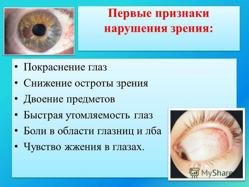 Особенности нарушения сумеречного зрения