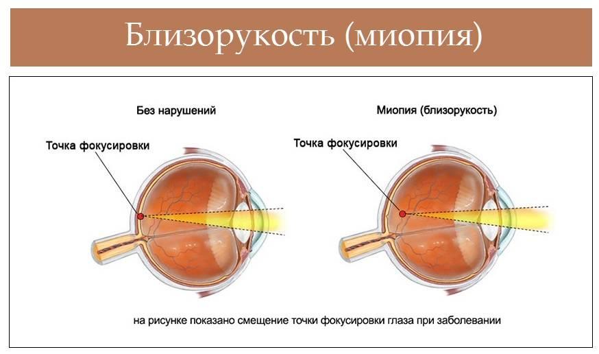 Зрение при близорукости: симптоматика, диагностика, коррекция