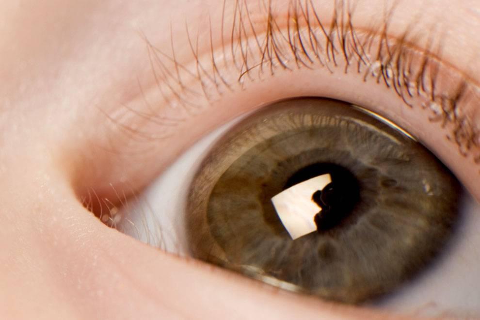 Гной в глаза – причины и лечение народными средствами у взрослого