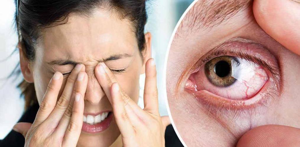 Ощущение песка в глазах, жжение и сухость: причины и лечение каплями
