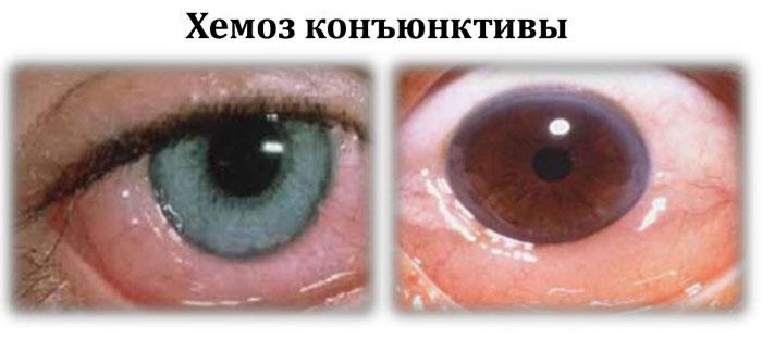 Хемоз: что это такое, причины возникновения заболевания и его лечение