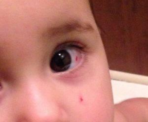 За сколько заживает царапина на роговице глаза