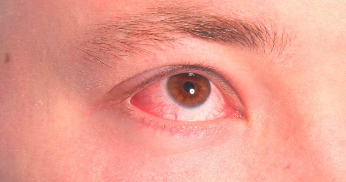 Фолликулярный конъюнктивит у человека, симптомы и лечение фолликулярного конъюнктивита