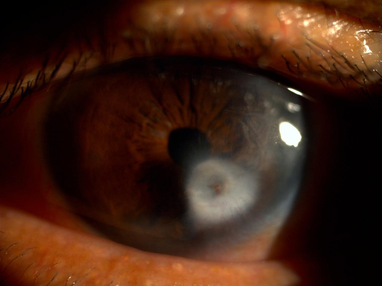 Бельмо на глазу – лейкомы глаза