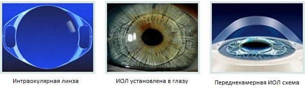 Что такое интраокулярные контактные линзы в офтальмологии
