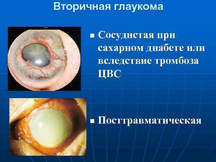 Врожденная глаукома: причины, признаки и лечение — глаза эксперт