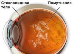 """Деструкция стекловидного тела глаза - """"здоровое око"""""""