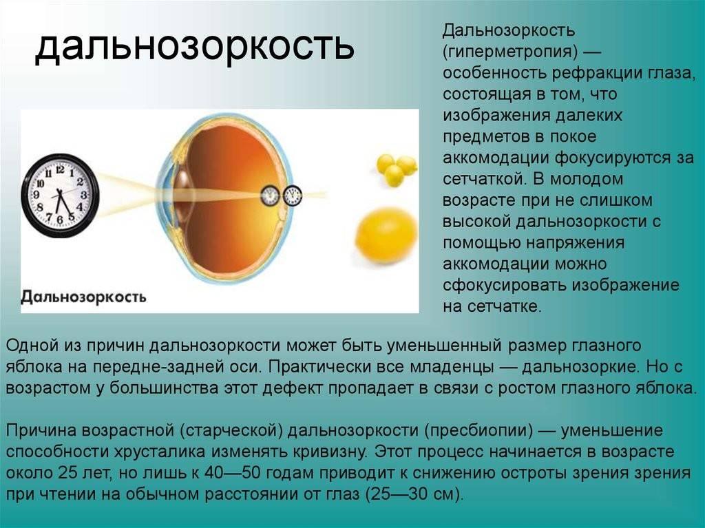Близорукость - причины: почему возникает миопия, из-за чего появляется