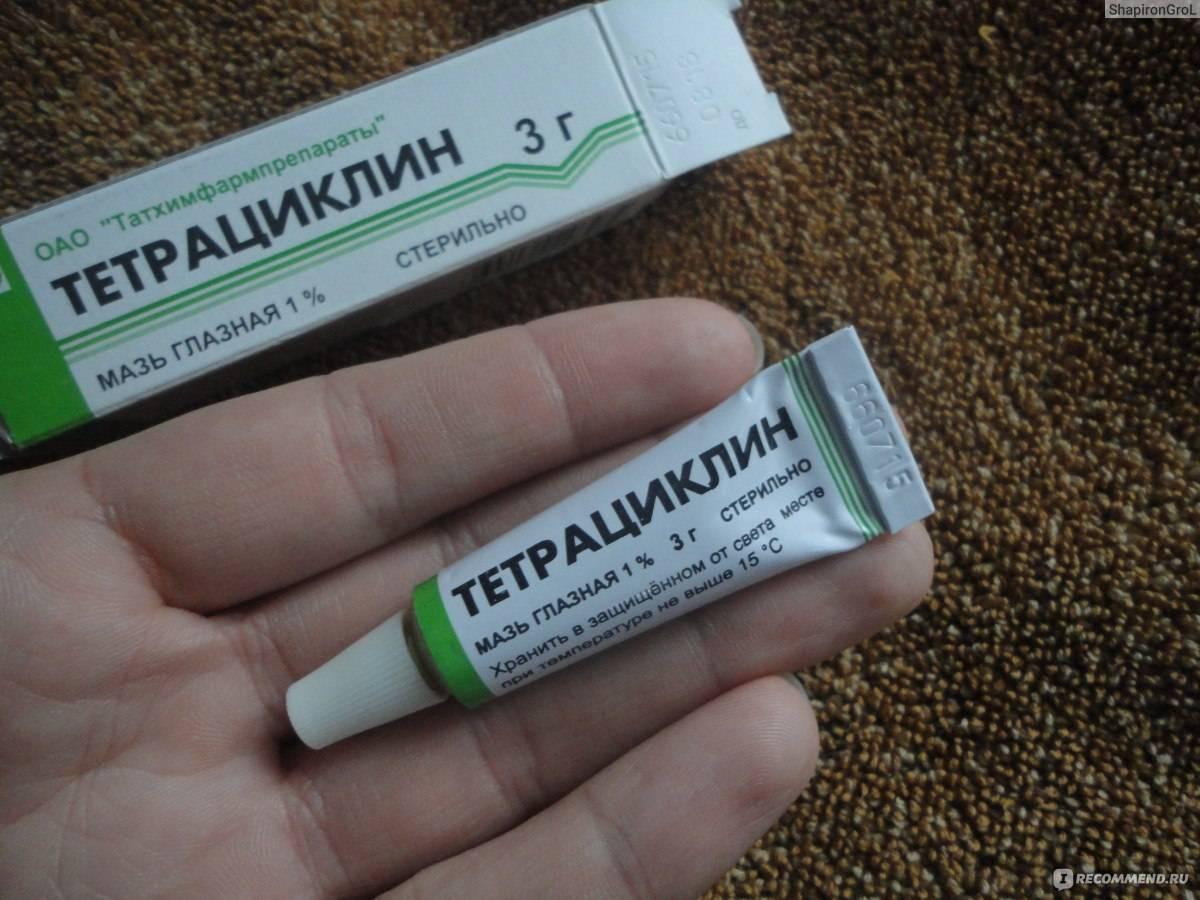 Тетрациклиновая мазь от ячменя на глазу, форма выпуска тетрациклина при глазных заболеваниях