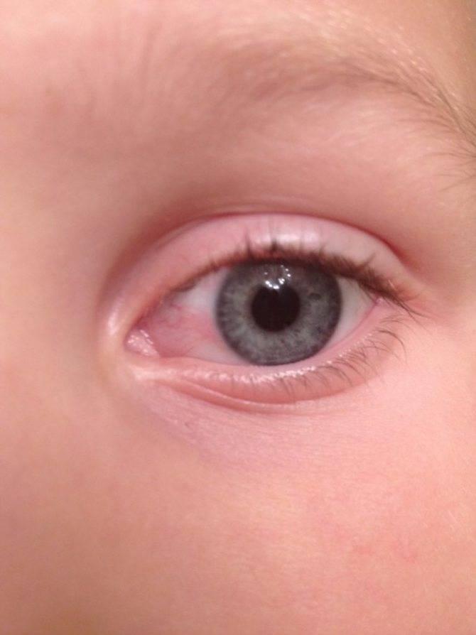 Что делать, если у ребенка покраснел глаз: причины симптома, как лечить, чем можно закапать?