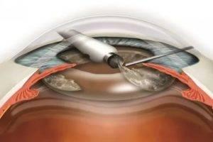Как проводится операция катаракта?