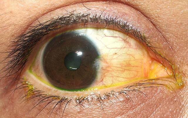 Пингвекула глаза: причины, диагностика, лечение и профилактика