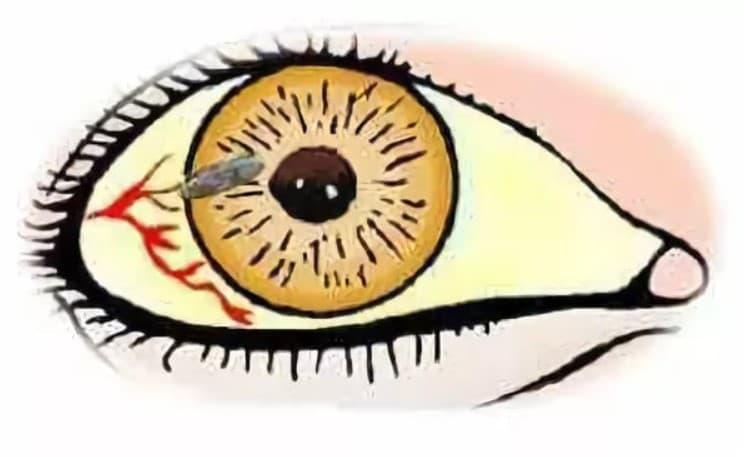 Симпатическая офтальмия патогенез. причины и симптомы симпатической офтальмии и способы лечения. диагностика симпатической офтальмии