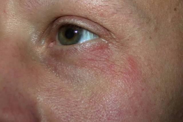 Красные точки вокруг глаз у взрослого