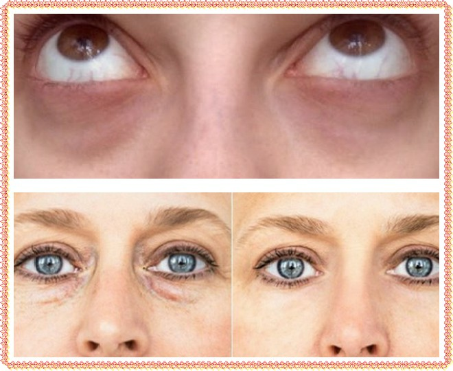 Синева вокруг глаз у взрослого. синяки под глазами: возможные причины появления | школа красоты