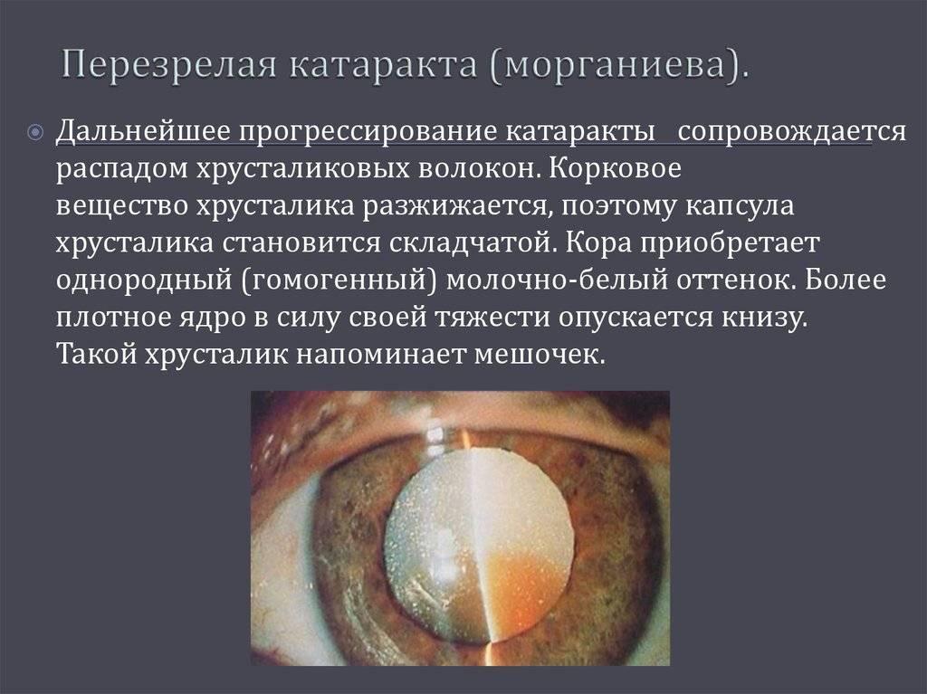 Лечение катаракты лазером и лазерная дисцизия вторичной формы: показания, подготовка, этапы операции, послеоперационный период, цена