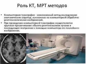 Компьютерная томография глаза - что это, показания для исследования