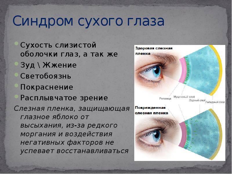 Роговица – как безжизненная пустыня! синдром сухого глаза: что это, симптомы и лечение
