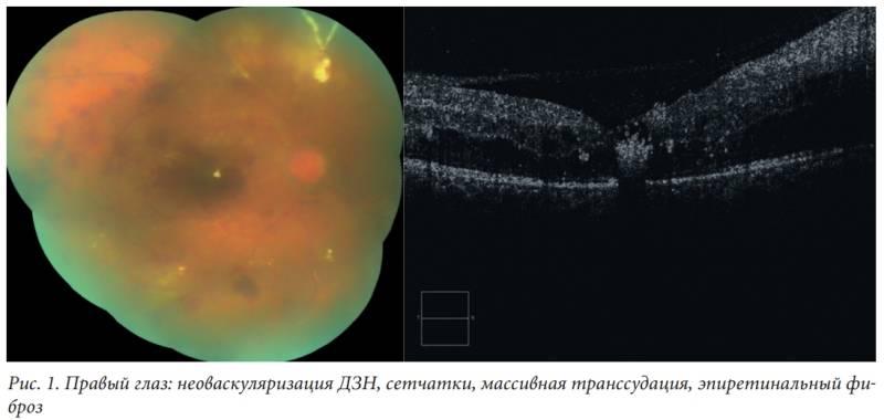 Фиброз стекловидного тела