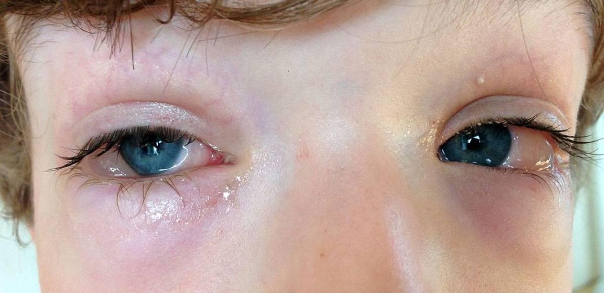 Определяем и лечим аллергический конъюнктивит у ребенка