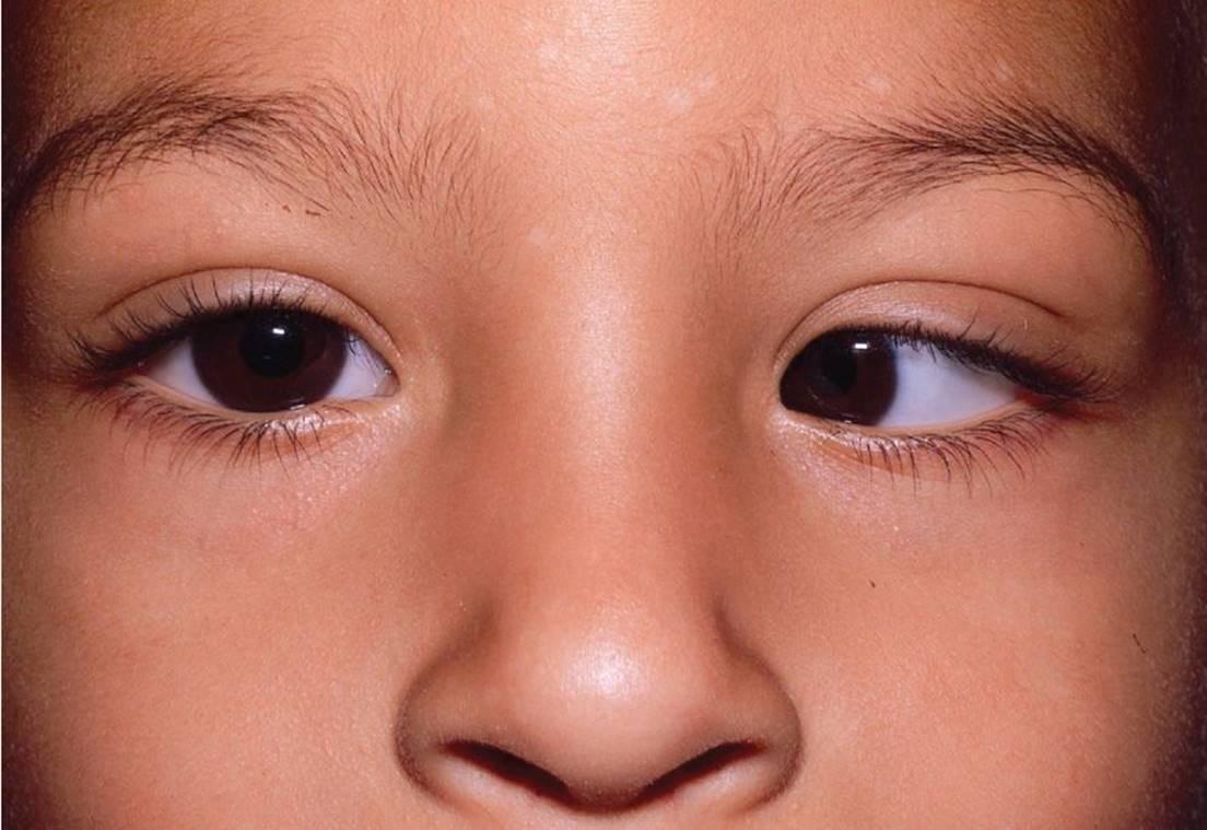 Глаза «бегают» из стороны в сторону, как с этим справится? что такое нистагм, его лечение