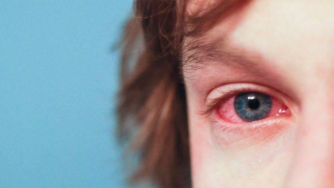 Симптом какого заболевания светобоязнь: причины, почему глаза боятся света и как провести лечение
