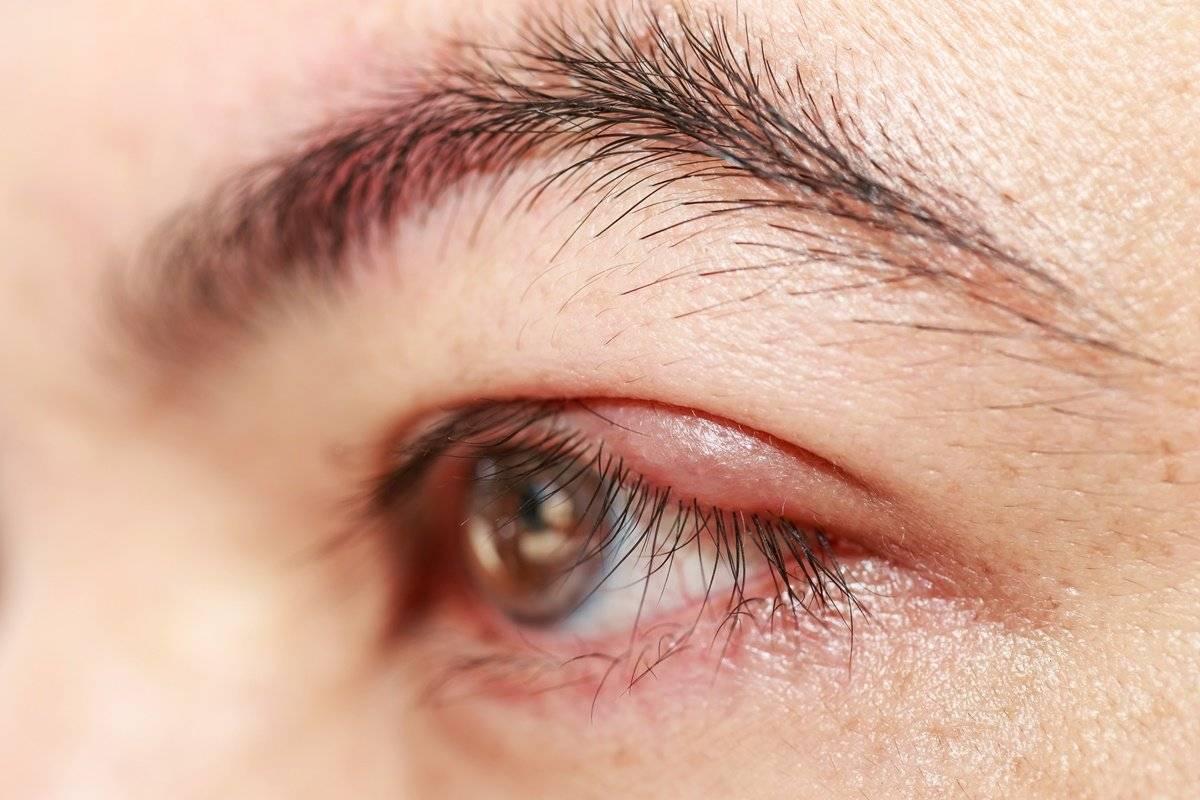 Внутренний ячмень на глазу: как выглядит воспаление внутри под веком, фото с разных сторон