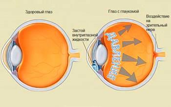 Вторичная некомпенсированная глаукома