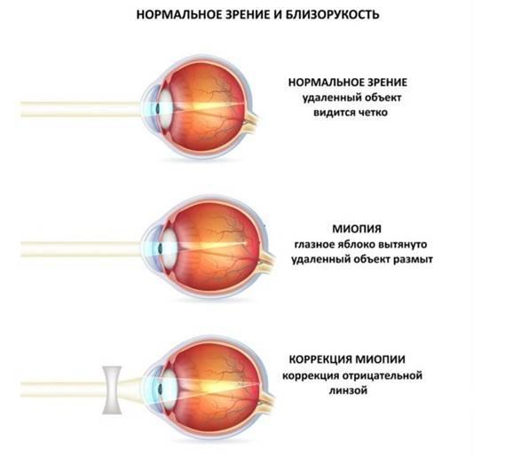 Норма зрения – какая бывает и какая должна быть, как измеряется